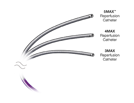 MAX<sup>™</sup> Reperfusion Catheters