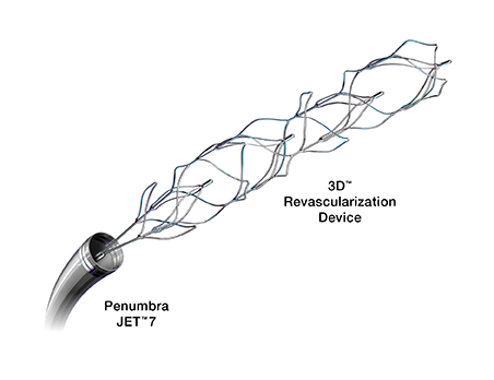 3D Revascularization Device<sup>™</sup>